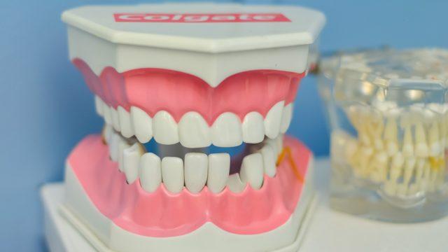 歯医者選びにクリーニングがおすすめな理由①